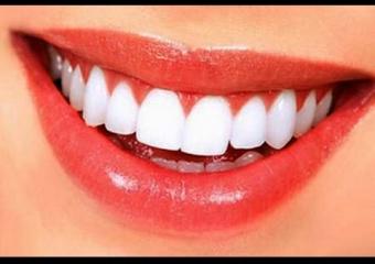 Hangi Aralıklar İle Diş Taşı Temizletilmelidir?