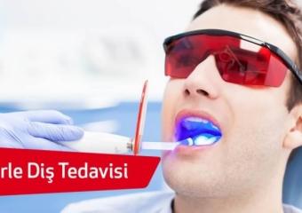 Lazer Destekli Diş Tedavileri Nelerdir?