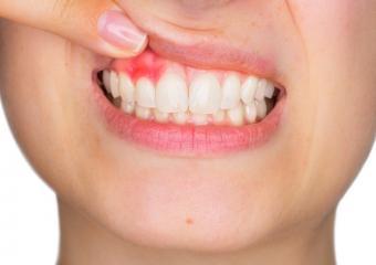 Diş Eti Çekilmesi Sebepleri, Tedavisi