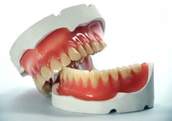 Diş Protezi Nedir? Türleri Nedir? Nasıl Takılır?