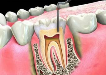 Dolgudan Sonra Diş Ağrısı ve Sızlaması