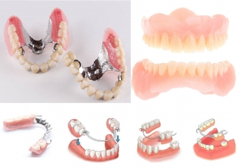 Diş Protezlerinin Faydaları