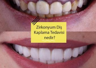 Zirkonyum Diş Kaplama Tedavisi Nedir?